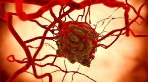 Eat to Defeat Cancer—Angiogenesis and the Promise it Carries